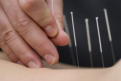 Physiotherapy and Acupuncture at Mount-Leonard Physiotherapy & Sports Injury Clinic, Anglesey